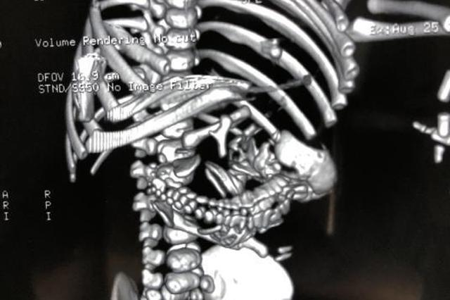 """完整胚胎寄生腹内 出生4天后男婴接受""""剖腹产""""手术"""