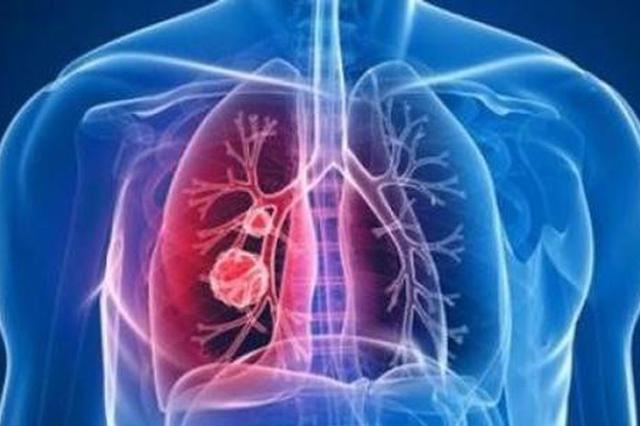 17例新型肺炎死亡病例:最小48最大89岁多有既往慢病史