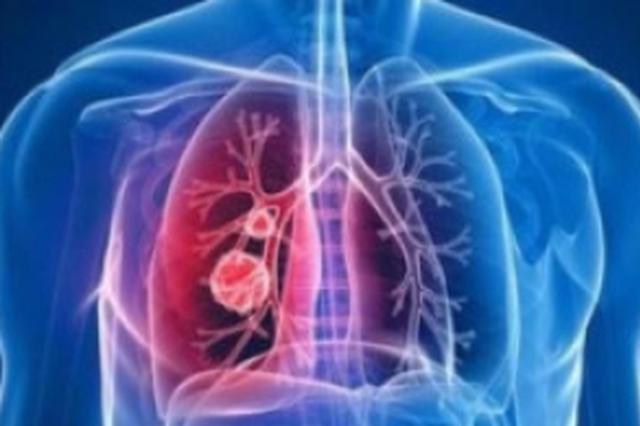 31省份新增新冠肺炎确诊病例2048例 累计确诊70548例