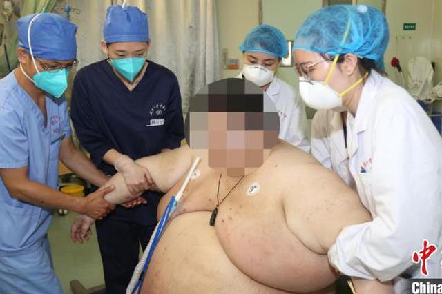 武汉26岁小伙体重达556斤 宅家5个月体重飙升200多斤