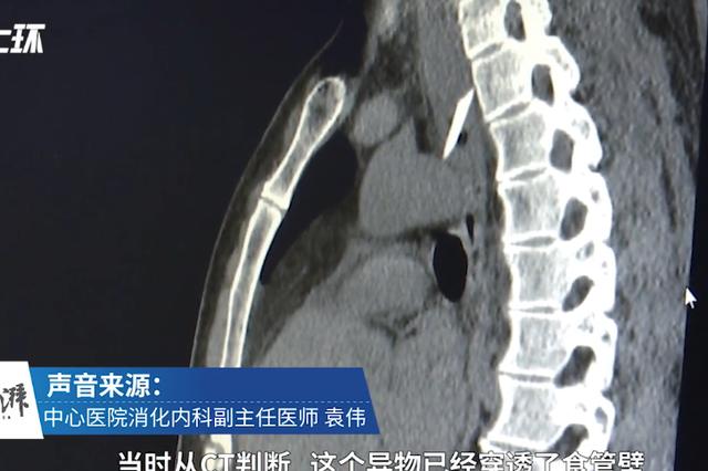 宜昌男子进食被鸭骨卡住食道 医生:主动脉险被划破