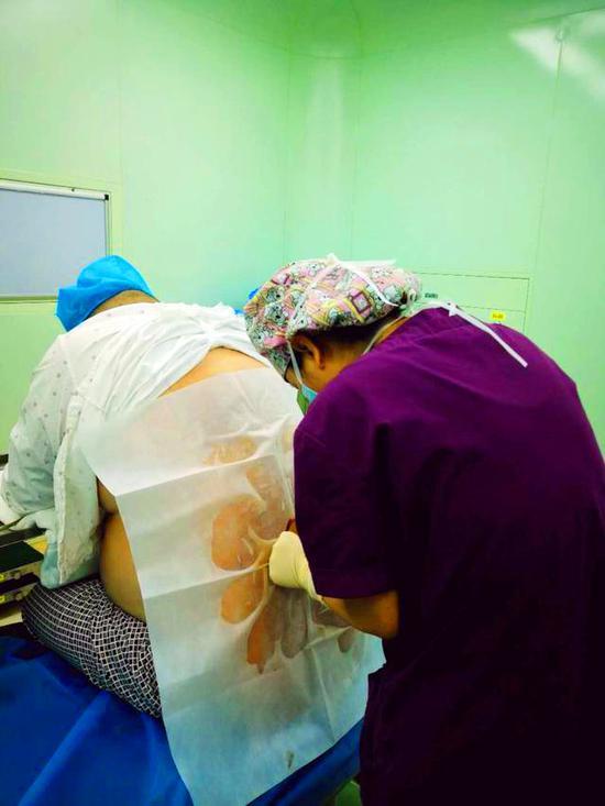 图为:麻醉师正在给胖哥打麻药