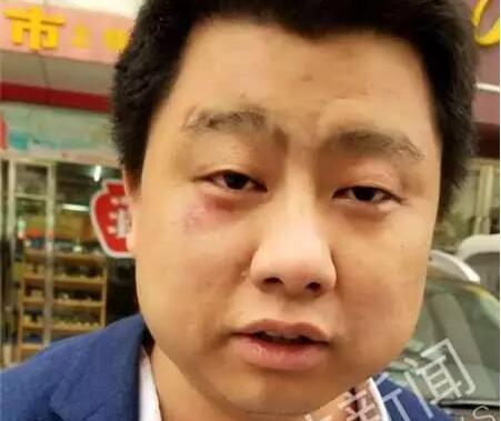 北京律师在湖北办案期间被打:13涉案嫌疑人被刑拘
