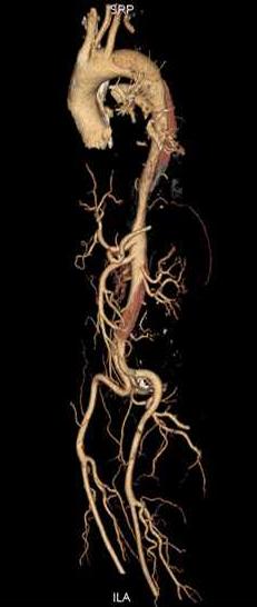 图2:B型夹层累及降主动脉以远