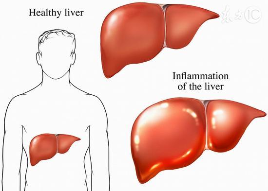 護肝兩大法寶 你有幾個?|肝臟|美容