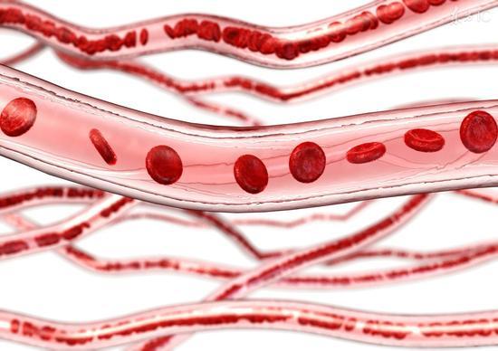 教你一招清潔血管|血管|動脈|動脈粥樣硬化