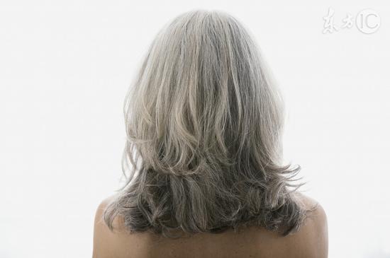 头发早白八个原因