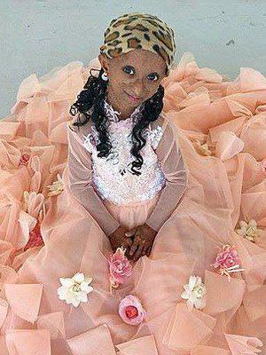 少女患早衰症身体年龄达144岁