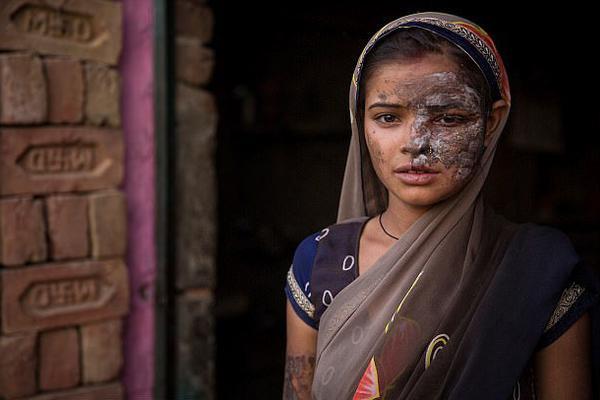 灭绝人性!印女子遭生父泼硫酸致毁容