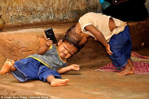 250万分之1的出现几率 印度2岁连体宝宝有望分离