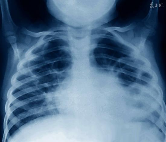 宫颈癌的早期信号