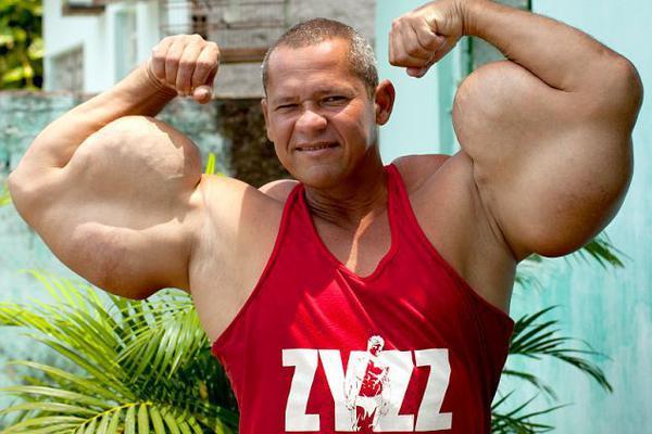 肌肉男为健美注射可致命混合物 手臂畸形粗壮