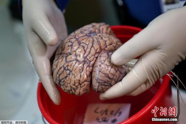 美国纽约大脑银行:冷冻人脑用电锯切片保存