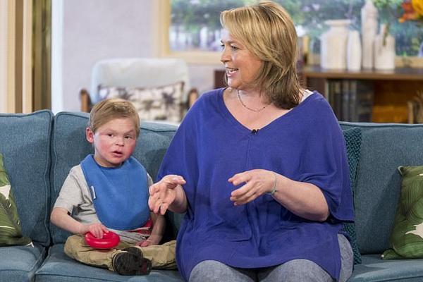 现实版返老还童:英13岁男孩患罕见病外形似3岁