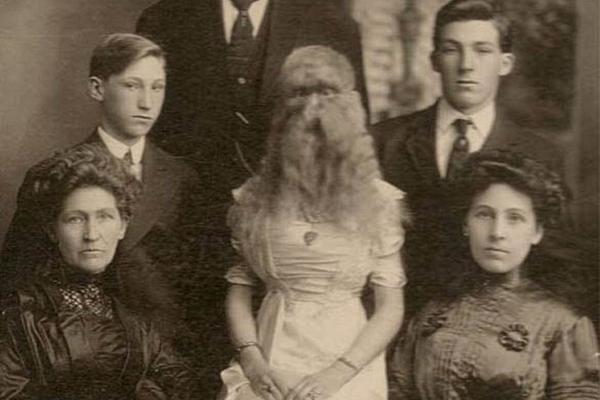 """图揭19世纪""""怪胎"""" 身体畸形诡异神秘"""