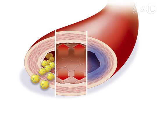 降血脂的好办法有哪些|血脂|脂肪|胆固醇