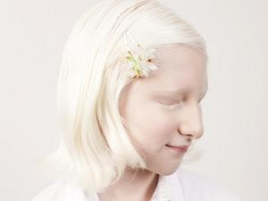 """白化病人肖像仿若""""天使"""""""
