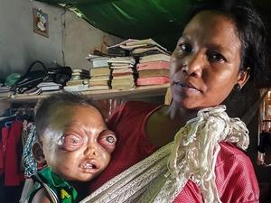 印2岁男童患眼癌 眼球外凸似怪物