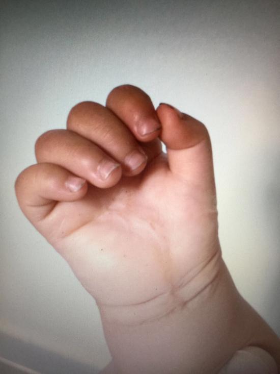 小患者右手逐渐好转
