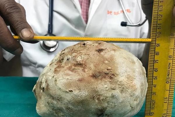 印男子膀胱取出1.5公斤结石