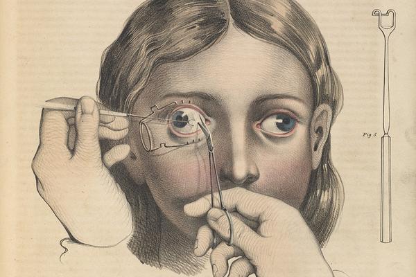 19世纪的外科手术竟是这样