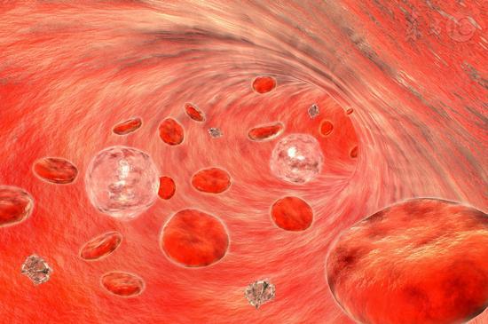 吃什么东西能防止血管堵塞