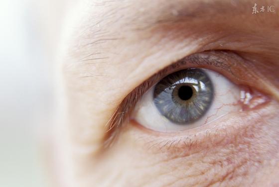 眼睛有红血丝要警惕这些病