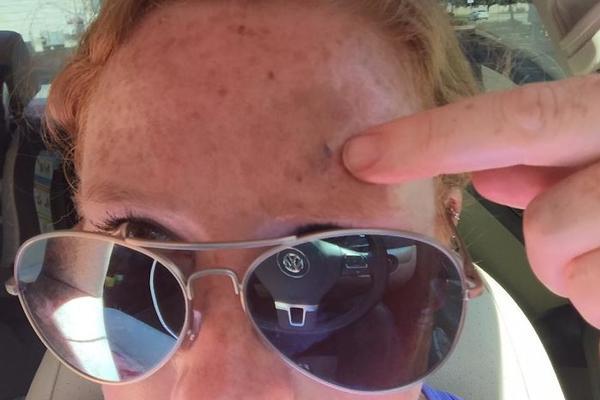 美国妈妈与黑色素瘤抗争