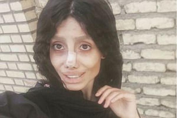 伊朗女子整容50次只为拥有偶像安吉莉娜·朱莉容貌