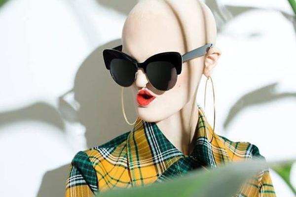 她天生发育不良 却成为时尚界的一股清流