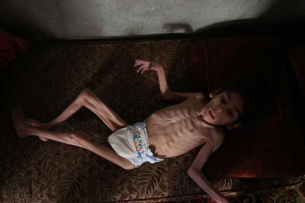 触目惊心!叙利亚8岁女童瘦到皮包骨