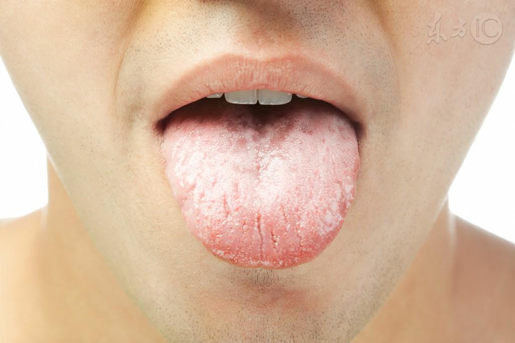 从舌头能看出心脏病