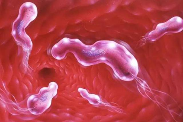 这种癌症发病呈年轻化趋势 到45岁要开始筛查