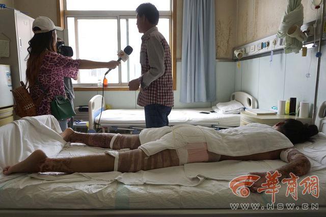 少女美容院打工被严重烧伤 涉事公司:不可能出钱