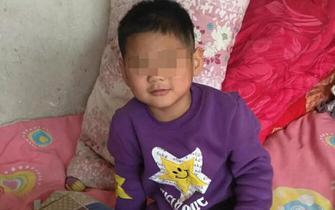 河北6岁男童被继母烫伤虐待