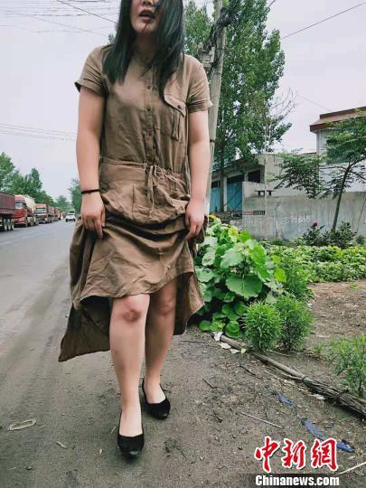 跪地半个多小时急救,王亚丽的膝盖被石子磨破。禹州市第二人民医院供图