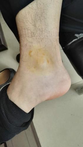 民警抓捕时脚踝受伤