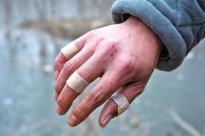 董传西救人受伤的右手至今还留有伤疤 记者 陈海峰 实习生 陈曼 摄影
