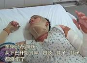 郑州孕妇野炊被烧为胎儿不敢打滚