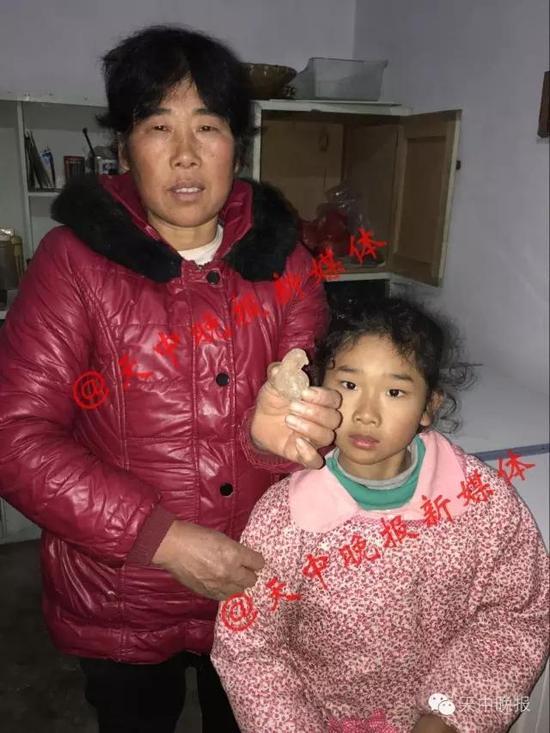 确山县村民家中杀鸡发现鸡宝