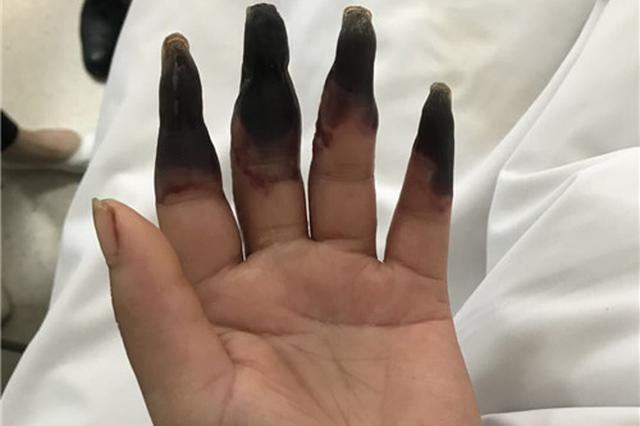 """女子手指蹭破后感染 八根手指突变""""枯树枝"""""""