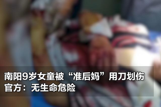 """南阳9岁女童被""""准后妈""""用刀划伤 官方:无生命危险"""