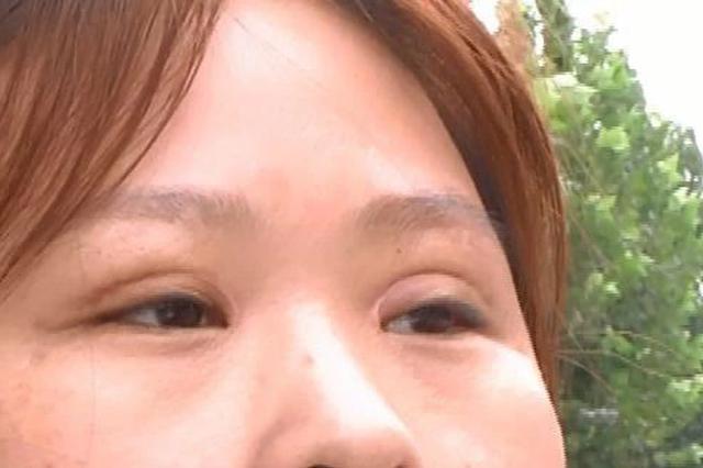 商丘女子割双眼皮一个宽一个窄 美容院无证老板跑路?
