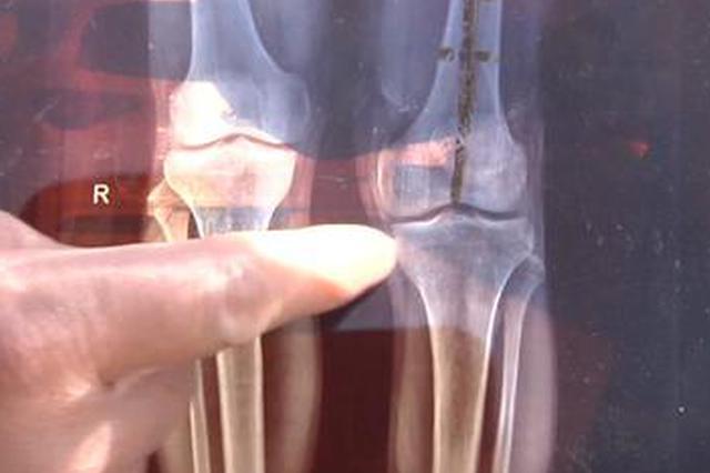 做完手术洛阳男子左腿比右腿长4公分 卫健委已介入调查