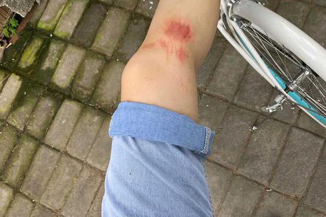 因年轻女子阻止儿童靠近宠物狗 济源老人驾驶三轮车将其撞伤