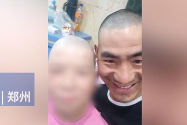 郑州父亲陪烧伤女儿剃光头:不想让她独自承受异样眼光