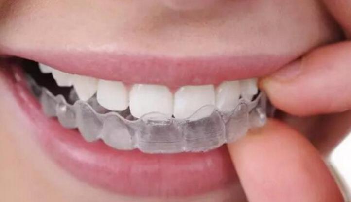 """矫正不一定要""""铁齿钢牙"""" 专家权威解答正畸误区"""