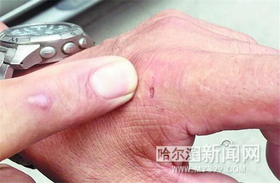 胡老汉被咬伤的手。