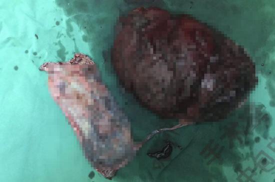 手术切除的脾脏