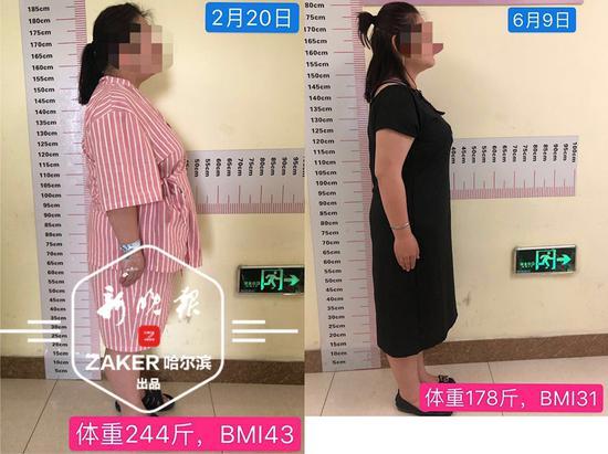 哈尔滨一244斤女子百天甩肉70斤 告别65岁体质